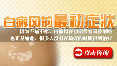 白癜风早期症状饮食注意